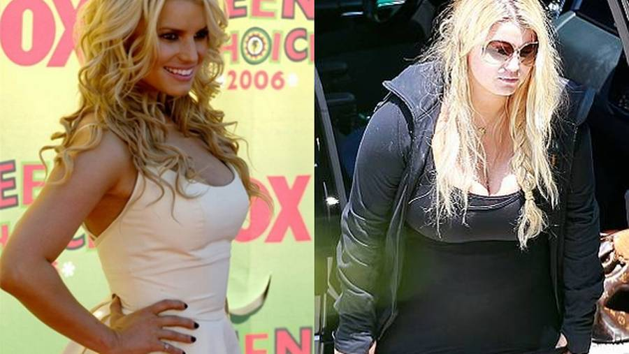 Jessica Simpson før og efter graviditeten. (Foto: All Over Press og AP).