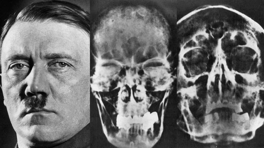 Adolf Hitler på et historisk foto og røntgen-billederne af kraniet. Foto: Heinrich Hoffmann/All Over Press og US National Archives