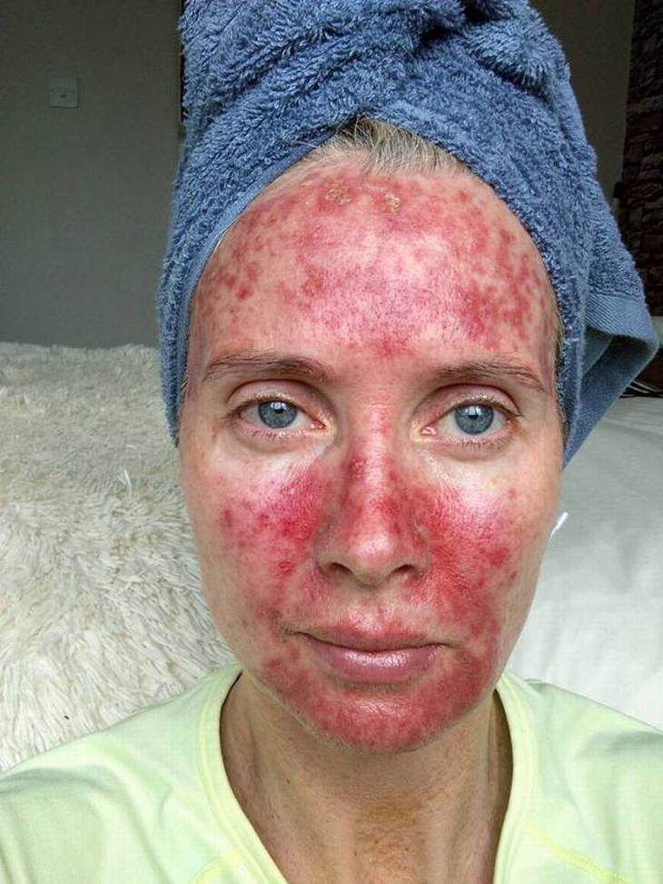 røde plamager i ansigtet