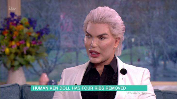 I går var Rodrigo Alves i studiet hos det britiske tv-show This Morning. Foto: All Over Press