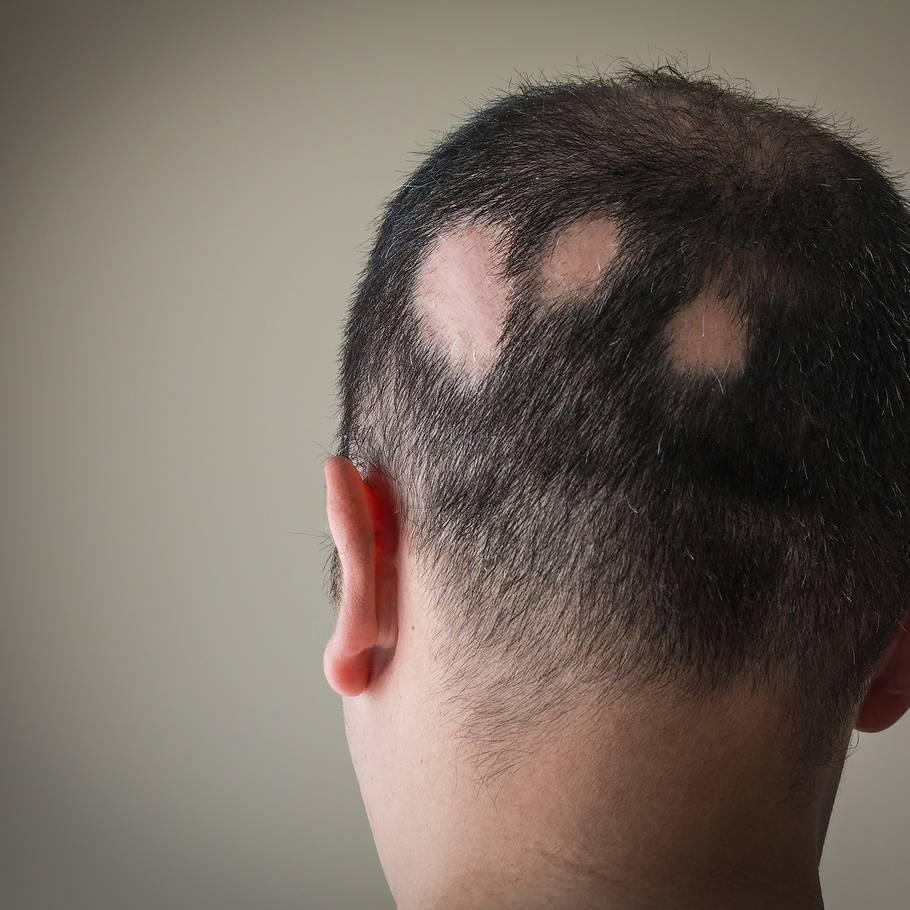 kløende hovedbund og hårtab
