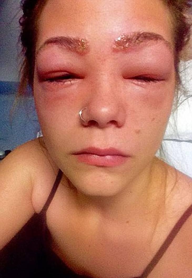 kraftig allergisk reaktion