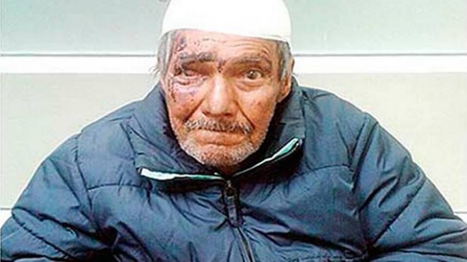 199aef68 Miguel Angel Gomar De Lunas hoved var viklet ind i bandager, da han kom fuld
