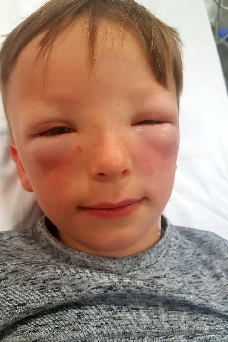 allergisk reaktion hævede øjne