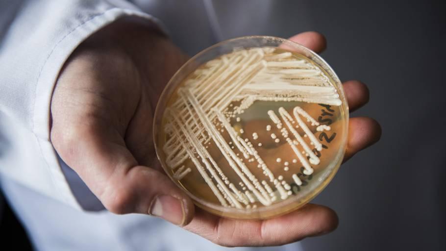 Candida auris' stigende resistens vækker bekymring hos forskere efter flere tilfælde i Brasilien. Foto: Nicolas Armer/AP/Ritzau Scanpix