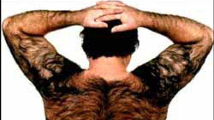 Ikke alle mænd er begejstret for hårpragt på ryggen, men det findes der råd for. Foto: Shutterstock