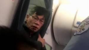 Mandag blev der offentliggjort en politirapport om den meget omtalte hændelse med David Dao i starten af april. Foto: AP
