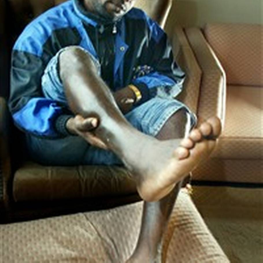 5dc821f37c60 Siden overfaldet har Carlos Michel haft smerter i højre fod