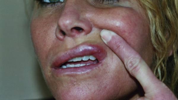 sår i mundvigen