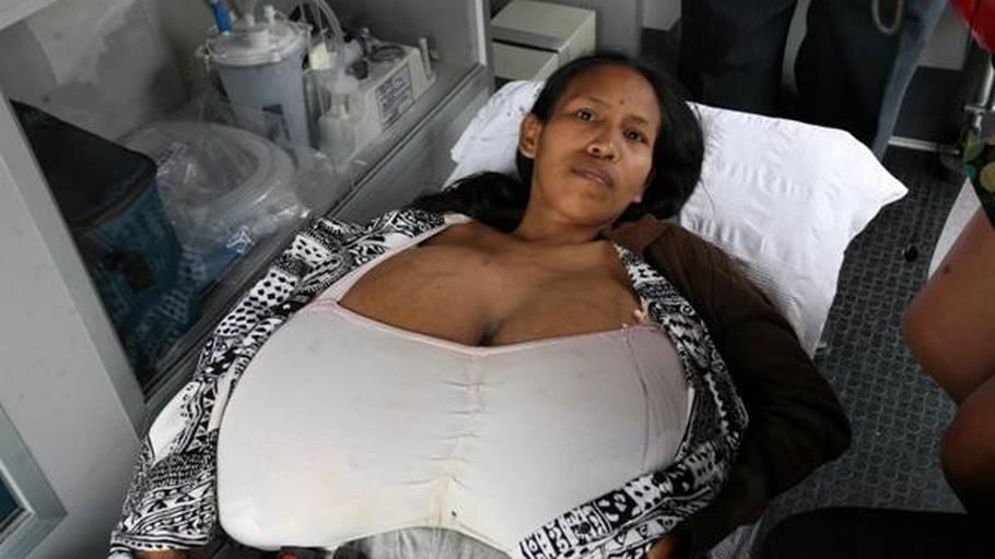 kæmpe store bryster