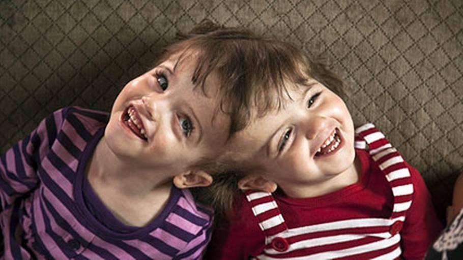 ashley og brittany conjoined tvillinger dating