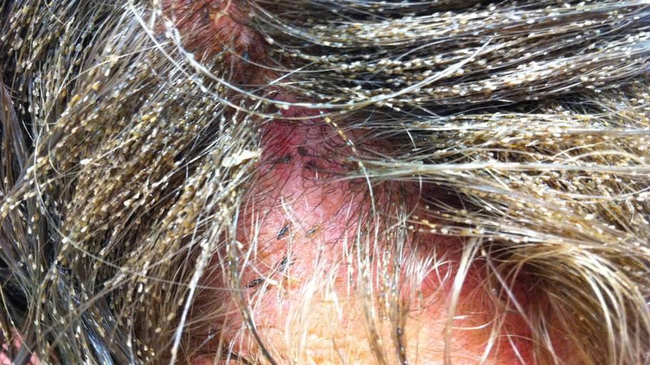 bekæmpelse af lus i håret